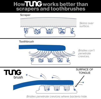 About Tung